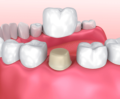 Dental Crowns Example Treatment