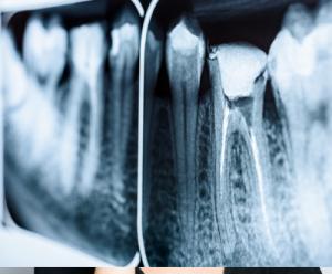 Root Canal Treatment - Dental Treatments   Etwall Dental