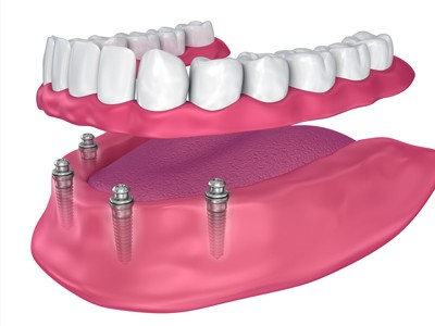 All-on-4® and All-on-6® Same-Day Teeth