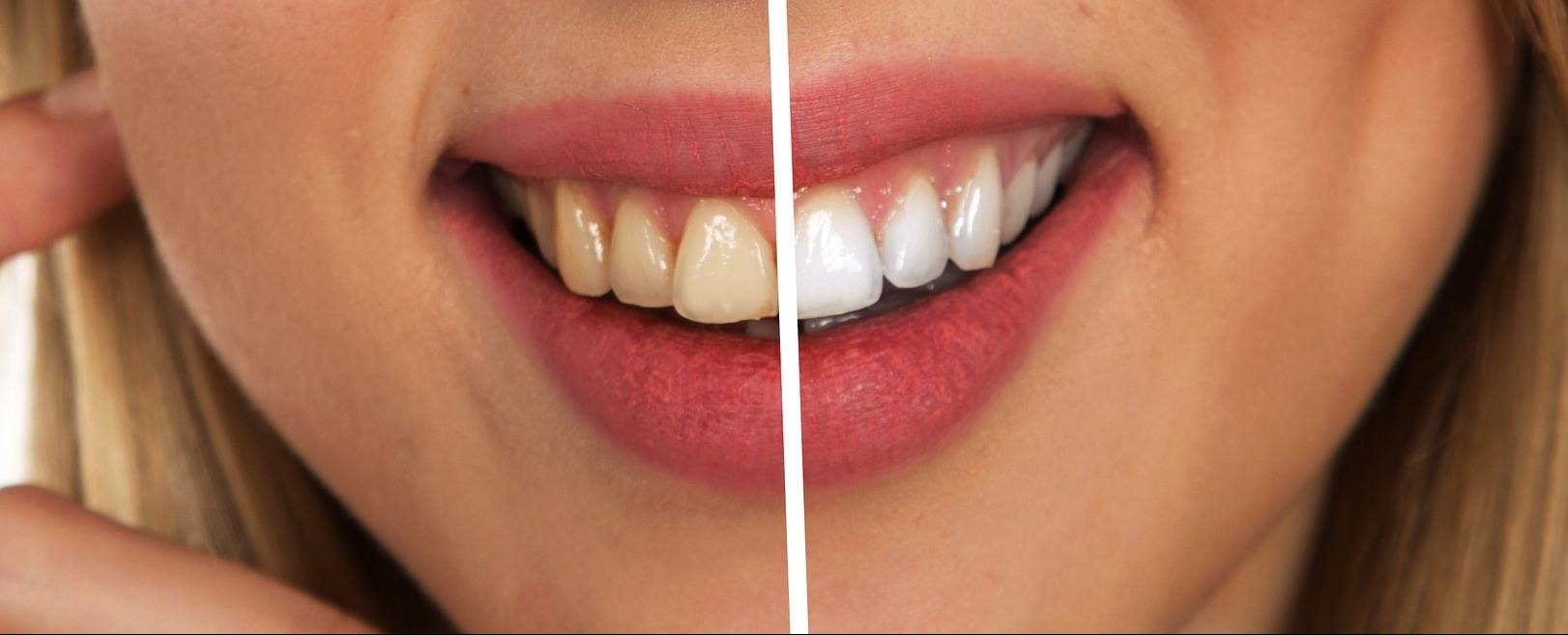 Veneers Teeth Whitening Female Model