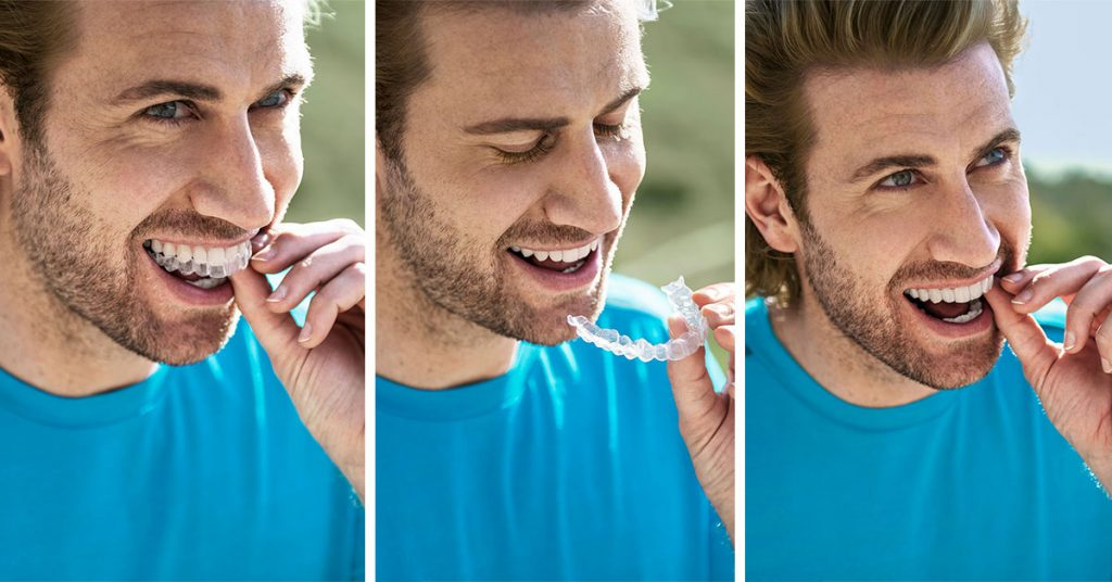 The Invisalign Brace Process