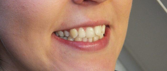 Before Alignment, Bleaching & Bonding patient teeth
