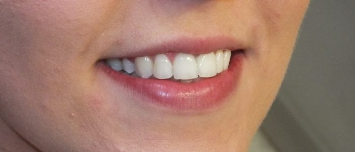 After Alignment, Bleaching & Bonding patient teeth