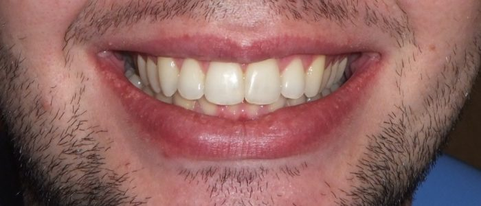 After ABB dental patient teeth