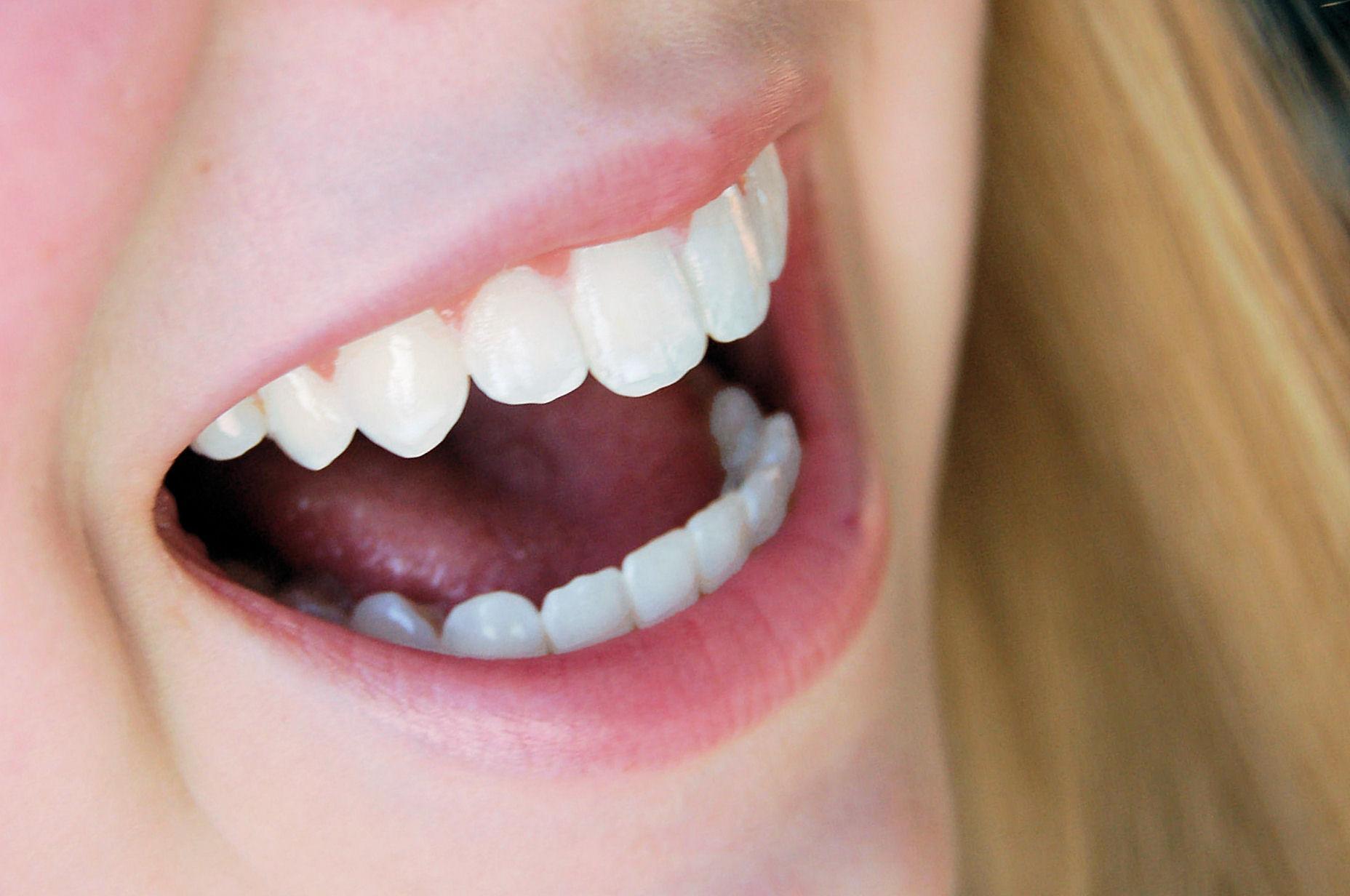 Looking After Your Teeth And Veneers