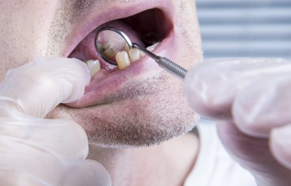 Top 4 Dental Options for Replacing Missing Teeth
